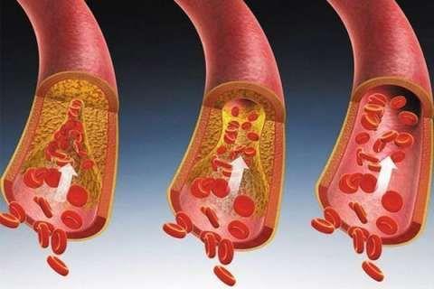 人到中年血液变粘稠?这些食物是血管的清道夫