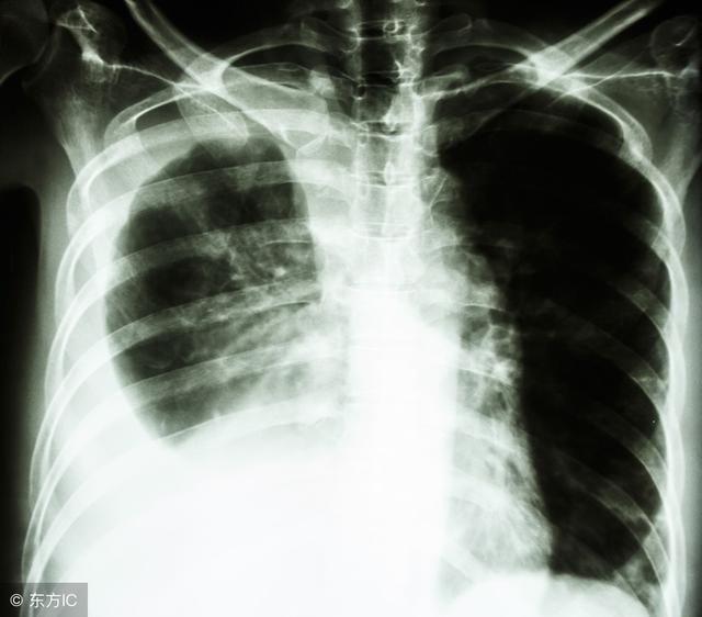 肺癌的早期征兆主要是什么?高危人群要格外注