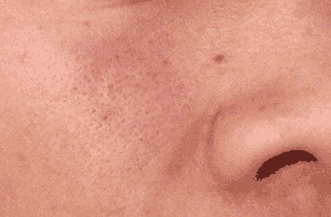 毛孔成螨虫洞,_脸上会出现3大点,_2个妙招,_给螨虫做大扫除