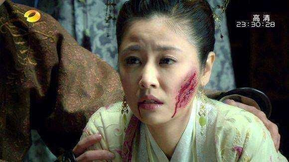 古装女星划伤脸:林心如真实,赵薇吓人,最后一位是来搞笑的?