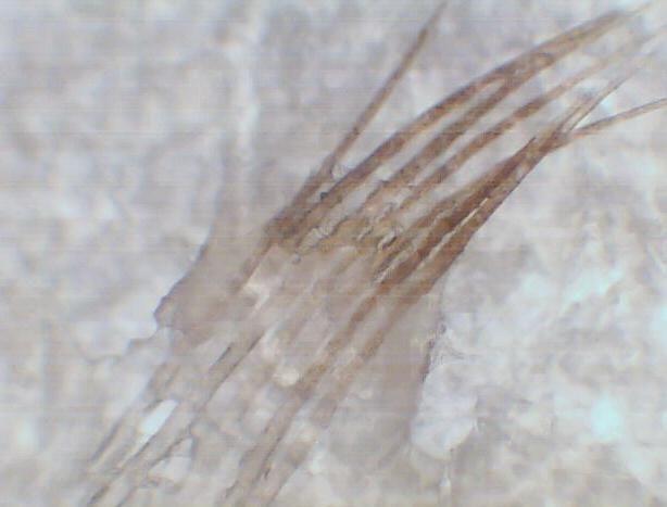 黑头显微镜图片_显微镜下的黑头图片