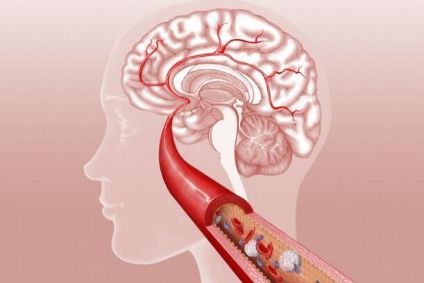 1.出现眩晕感 这种眩晕感通常会突然出现,看东西时候会有转动感和晃动感。根据每个人的病情程度,症状持续时间也会有所差异,有些人会伴有恶心和耳鸣。 2.出现暂时性的失语或全身无力 这些症状都是突然性的,持续时间十多秒到十几分钟甚至数小时才能恢复。恢复后患者如常人,但是这是典型的脑缺血的症状。 3.