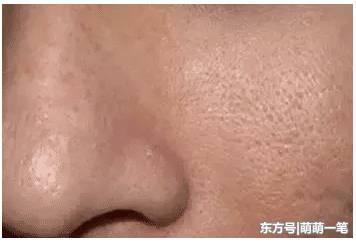 毛孔粗大皮肤粗糙,你该做这么管理皮肤,收细毛孔紧致肌肤!