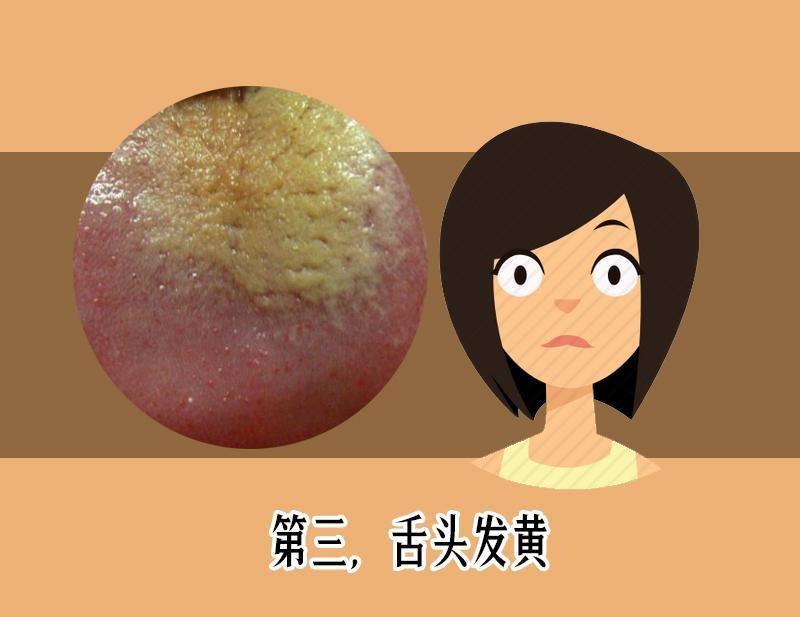 健康 正文  第四,舌头发黑 舌头上有一种叫做丝状乳头的结构,在正常