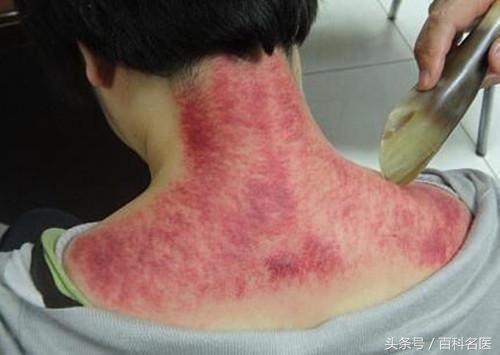 阿娇凌晨发布背部刮痧照片,湿气太重!网友心疼的不行!