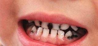 """<b>2岁孩子满嘴都是""""小黑牙"""", 结果不是因为糖, 而是家长无知!</b>"""