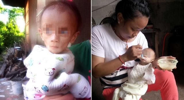 """1岁""""猴娃""""体重不足8斤,医院不敢收治,妈妈靠喂米糊养活他"""